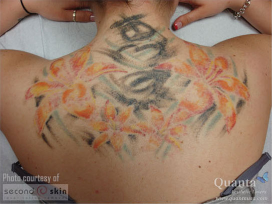 A back tattoo, beginning to fade after the first laser treatment
