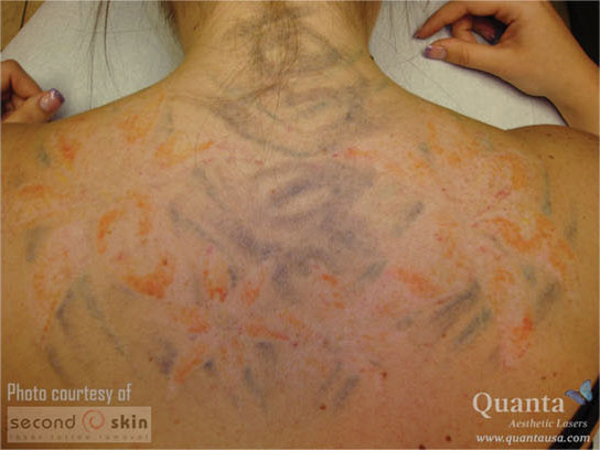 A back tattoo, fading further after subsequent laser treatments