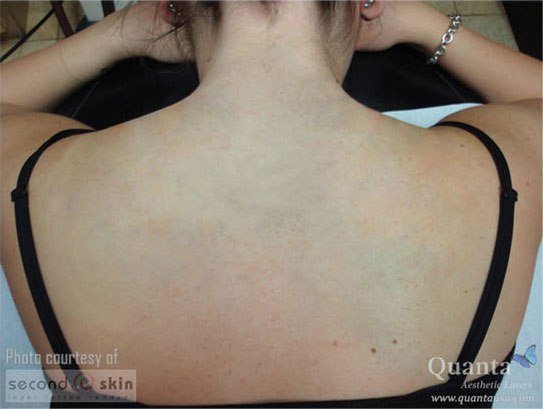 A back tattoo, fully removed after laser treatments